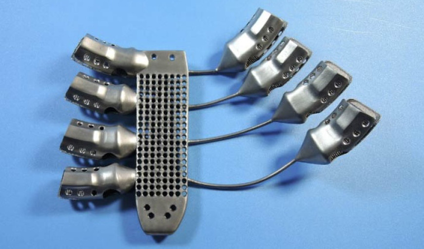Spanish Man Receives 3D-Printed Ribcage